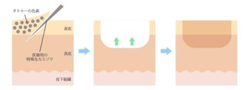 削皮法の施術方法の解説イラスト